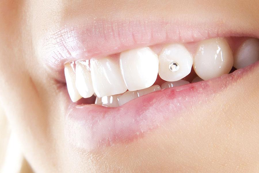 Diş Kristali