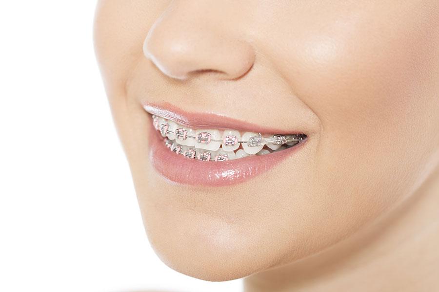 Ortodontik Tedavilerde Yaşın Önemi